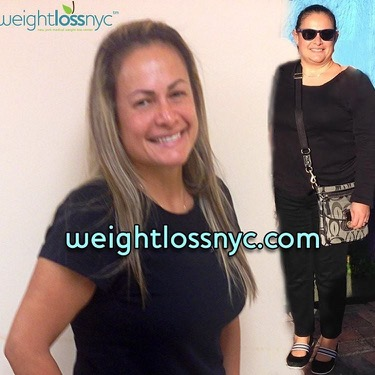 before after weight loss photo