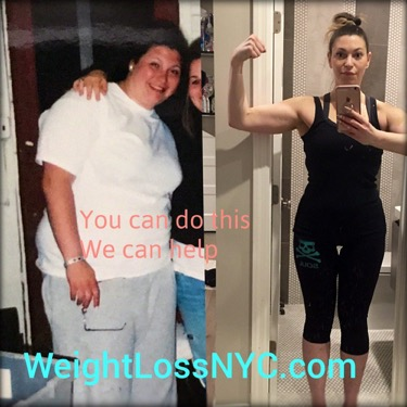 before-after weight loss photo